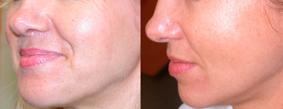dermaroller-skin-tightening-1