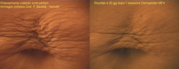 dermaroller-stretch-marks-1
