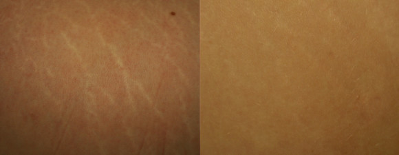 dermaroller-stretch-marks-2